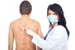 Сыпь при пищевой аллергии