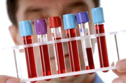 Анализ крови при колите кишечника