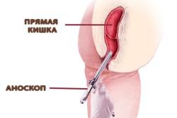 Процедура аноскопии для диагностики рака прямой кишки