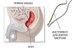 Биопсия для диагностики полипов в кишечнике