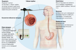 Эзофагогастродуоденоскопия двенадцатиперстной кишки