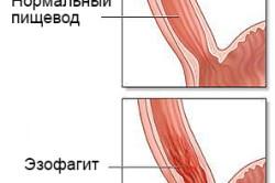 Схема эзофагита