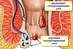 Геморрой - причина появления трещин