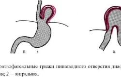 Параэзофагеальные грыжи пищеводного отверстия