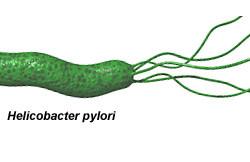 Бактерия хеликобактер пилори - причина повышенной кислотности желудка