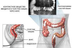 Схема ирригоскопии кишечника