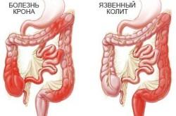 Схема язвенного колита кишечника