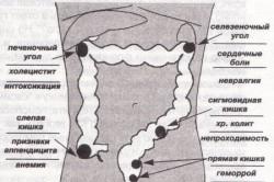 Схема рака прямой кишки