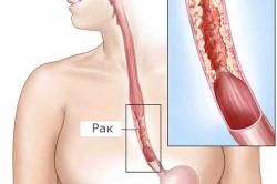 Схема рака пищевода