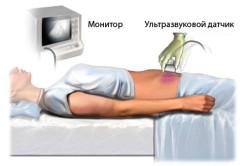 Схема проведения узи брюшной полости при долихосигме