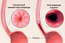 Язва пищевода Барретта как осложнение эзофагита