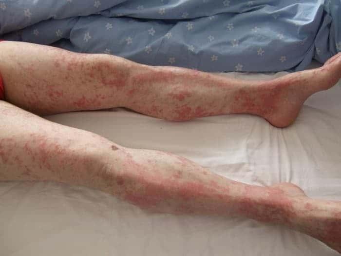 Псориаз ног