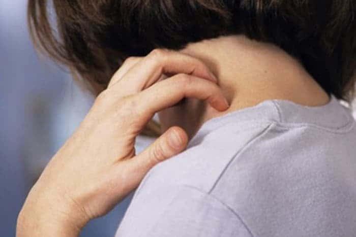 Передается ли псориаз по наследству детям, ребенку как заболевание