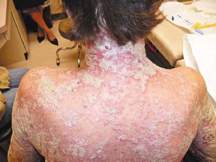Смертелен ли псориаз, как жить с болезнью и влияет ли псориаз на продолжительность жизни