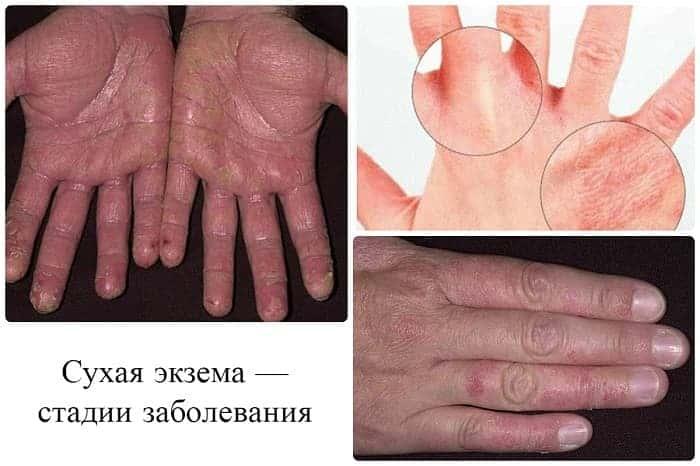 Сухая экзема рук