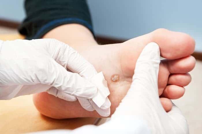 Лечение бородавок на ноге