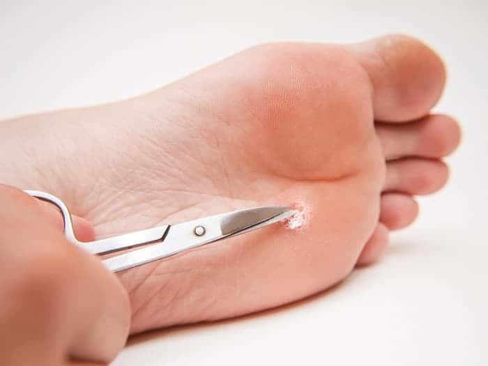 Бородавка на стопе или пятке лечение в домашних условиях