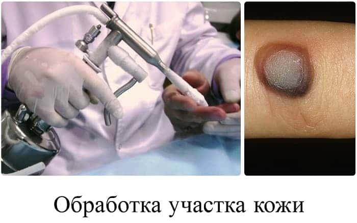 Последствия после прижигания бородавок азотом