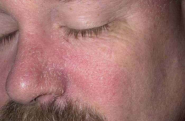 Экзема на веках, лечение вокруг глаз препараты