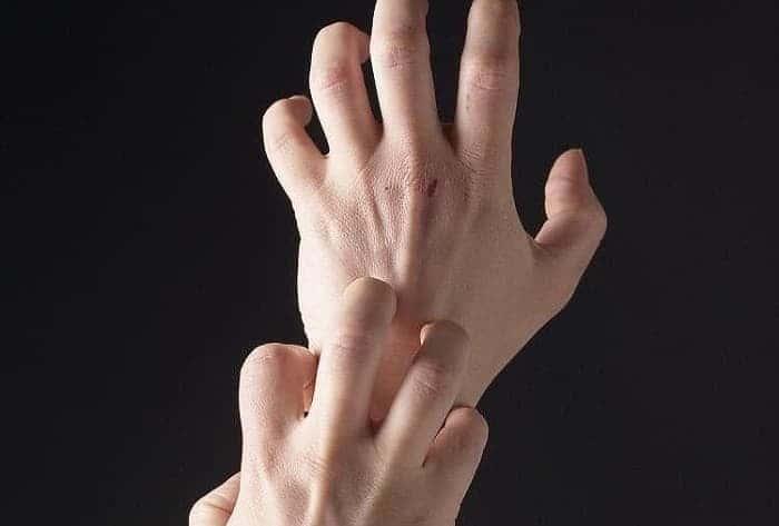 Зуд при экземе на руках
