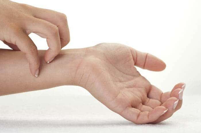 Как снять зуд при экземе на руках? Лечение экземы и зуда