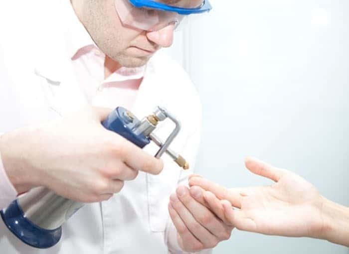 Удаление бородавок на руке азотом