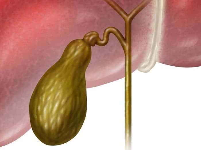 Папиллома в желчном пузыре