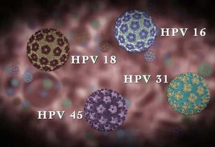 Вирус папилломы 16 типа