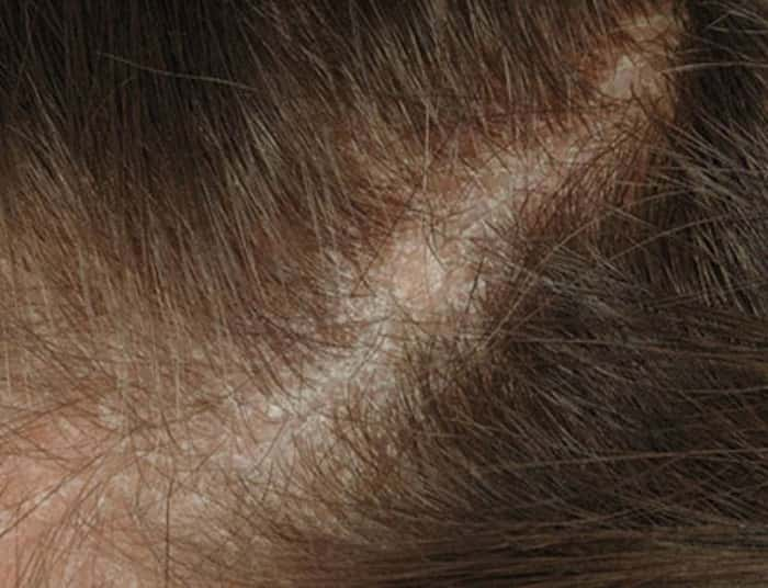 Дерматит на голове у взрослого