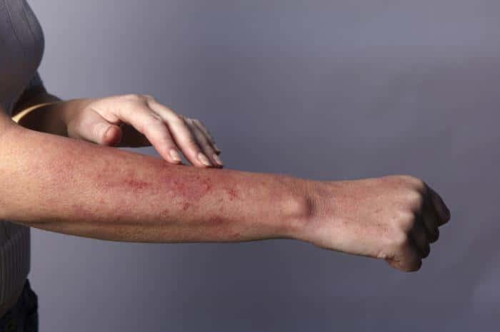Чем снять зуд при дерматите — Аллергия