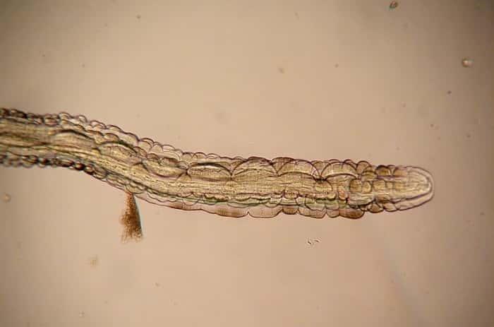 Папилломы и паразиты