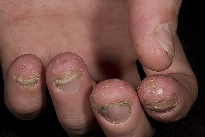 Грибок на пальцах рук - Как его не подхватить, а если заболел