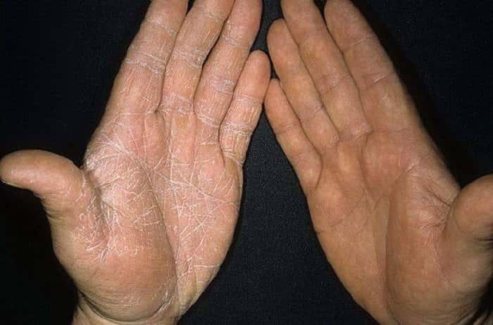 Инфекционный грибок на коже рук