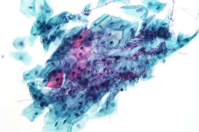 Грибок мицелий причины заражения - Все про грибок