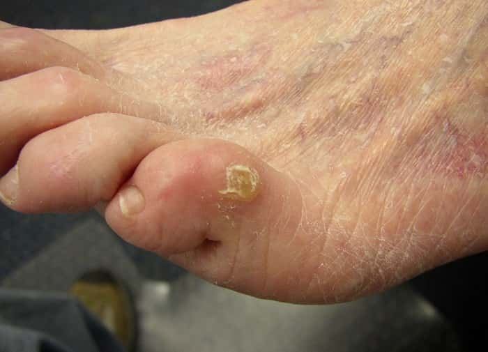 Лечить грибок пальцах ног