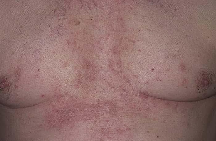 Грибок под грудью или под грудными железами
