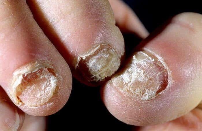 Как вылечить застарелый грибок ногтей на ногах