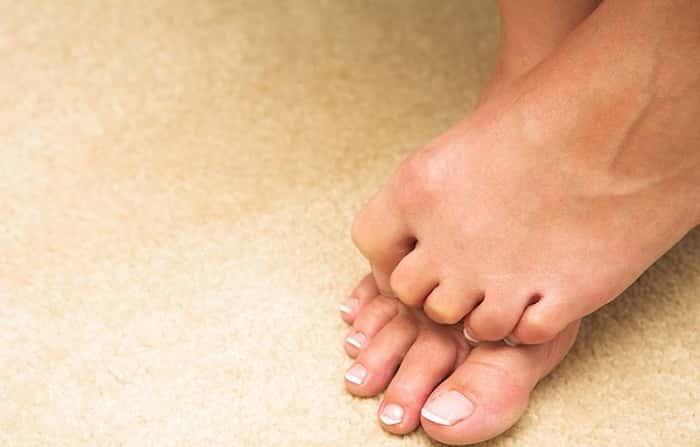 Какие виды грибка бывают на ногах — Сайт о грибке ногтя