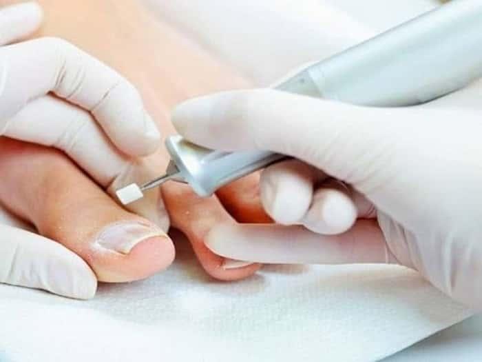 Как вылечить грибок ногтей в домашних условиях быстро и эффективно? Советы врача по лечению грибка ногтей дома - Женское мнение