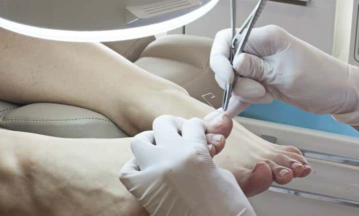 Снятие ногтевой пластины при грибке