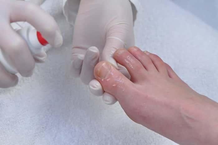 Спрей от грибка ногтей на ногах