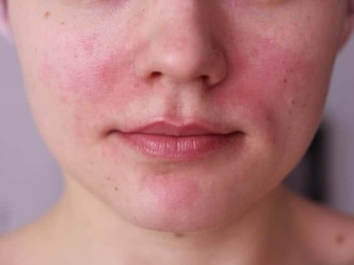 Жирная себорея кожи лица