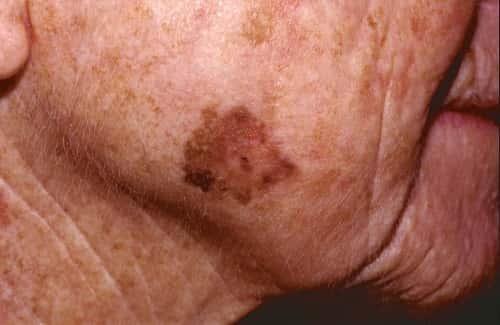 Актинический кератоз на лице