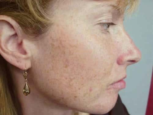 Пигментация на лице