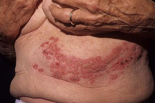 Опоясывающий лишай симптомы, лечение, последствия