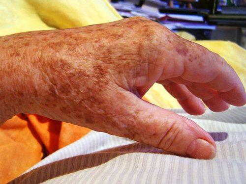 Коричневые пятна на коже, рука