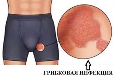 Красные пятна на головке полового члена