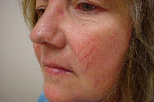 Купероз на лице, женщина