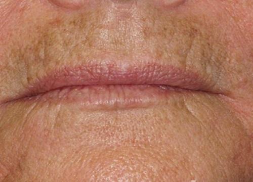 Пигментные пятна над верхней губой
