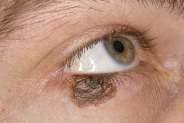 Пигментные пятна под глазами как избавиться от них дома